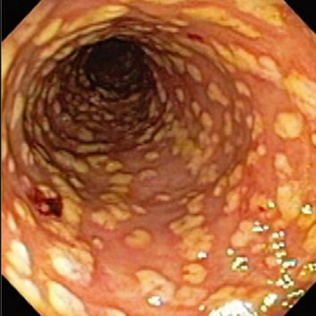 Characteristic pseudomembranous colitis seen in C. diff infections.